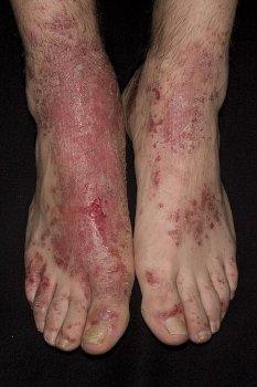 экзема на ноге симптомы фото