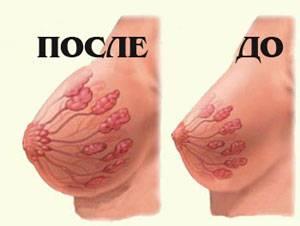 грудь после родов и до