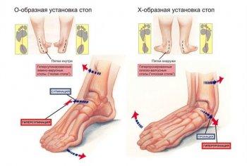шишки на ногах фото