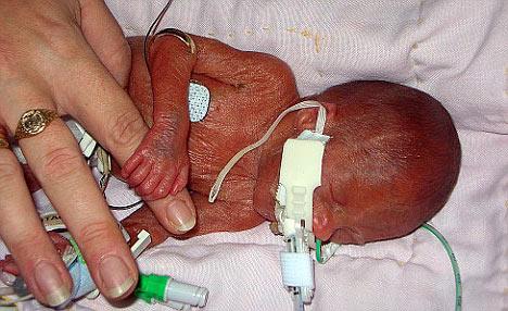 Ребенок, родившийся на 23 неделе беременности 23 неделя беременности
